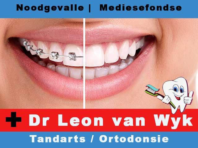 Dr Leon van Wyk nou in Hartenbos Spesiaal vir Ortodonsie